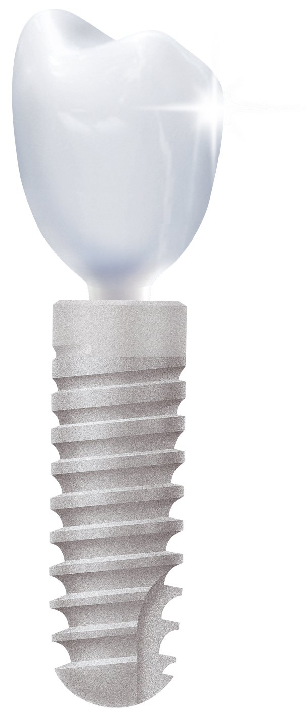 Ankylos implantų sistema