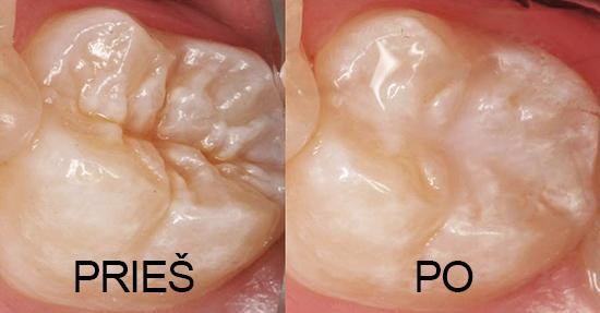 vaikų dantų silantavimas